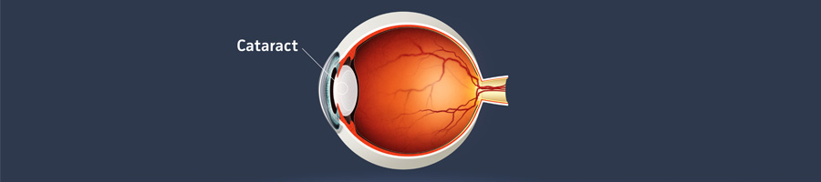 North Texas Vision Page Header Cataract